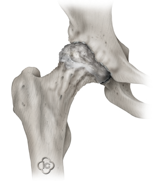 Illustration of a hip joint